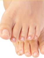 Common Rashes of the Feet