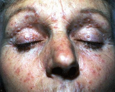 lupus miliaris disseminatus faciei