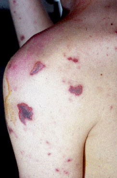 meningococcal infection