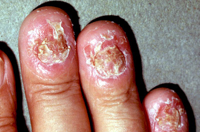 stable plaque psoriasis
