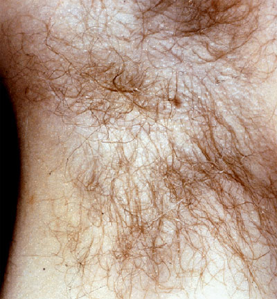 Trichomycosis Axillaris — NEJM